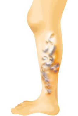 で 治る 分 30 静脈 下肢 は 瘤